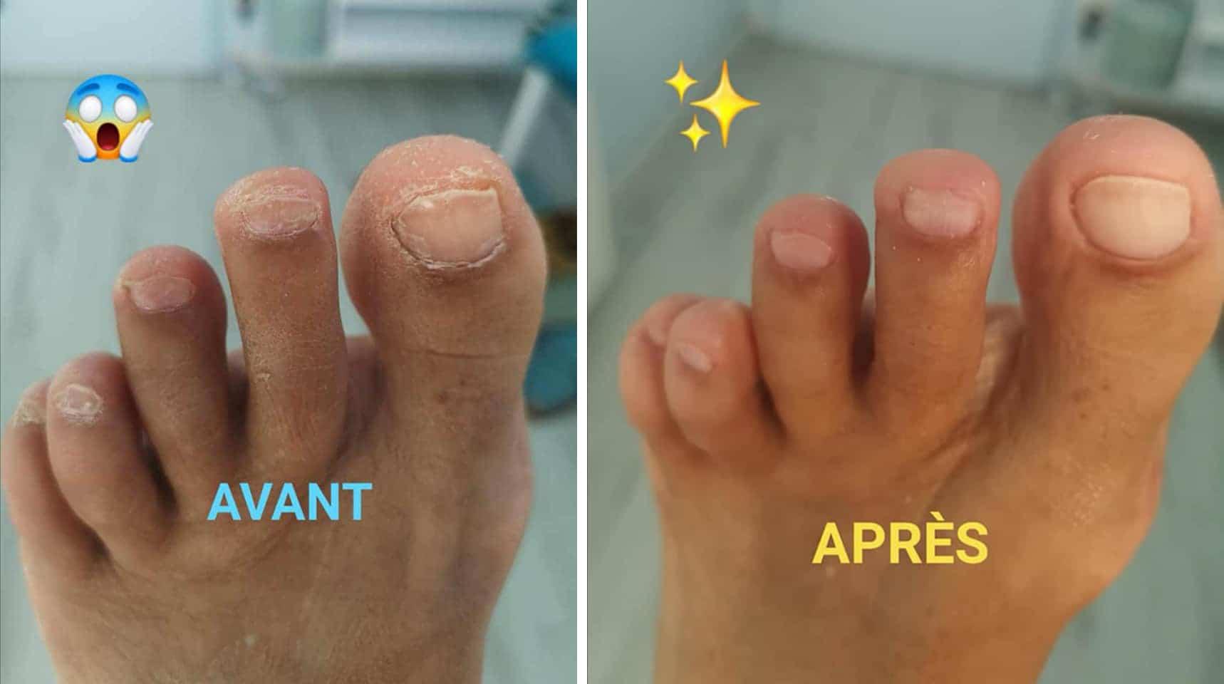 Beauté des pieds avant / après Institut Krysalide